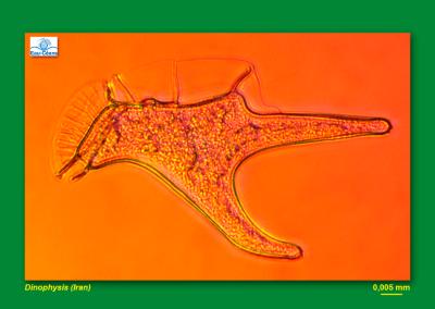 Dinophysis